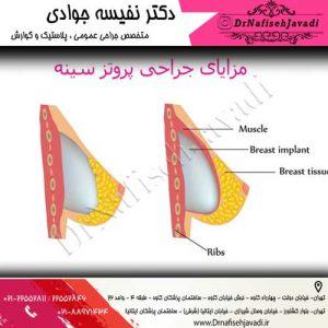 مزایای پروتز سینه