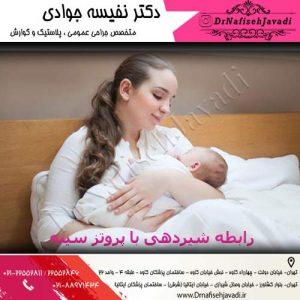 رابطه شیردهی با پروتز سینه