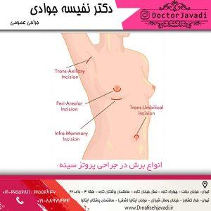 انواع برش در پروتز سینه