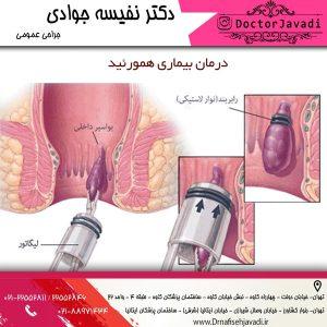درمان بیماری همورئید